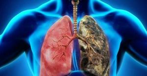 Akciğer kanserinde tarama yöntemleri neden önemli?