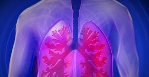 Akciğere yayılım  yapmış tümörlerde uygun hastalarda cerrahi gündeme gelebiliyor
