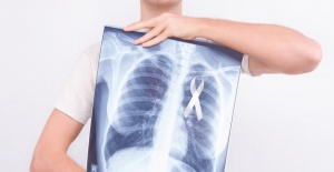 Akciğer kanseri tedavisinde dikkat edilmesi gereken hususlar