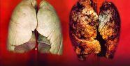 Akciğer Kanseri'nde Kişiye Özel İlaç